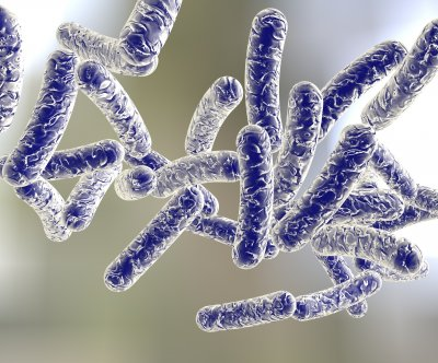 Legionnaires' disease outbreak hospitalizes nearly 100, kills 4 in North Carolina