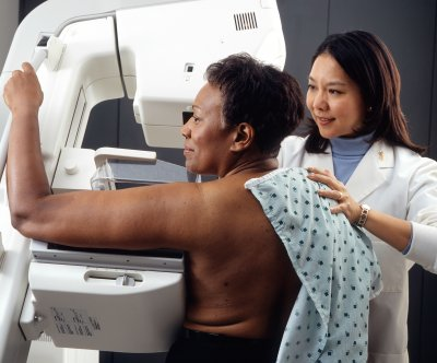 Very early stage breast cancer ups risk for invasive tumors, study shows
