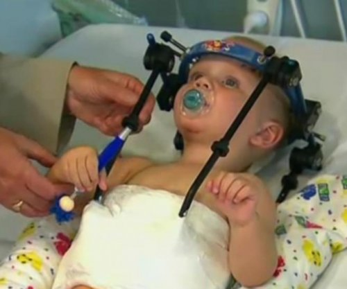 Baby's head reattached after 'internal decapitation'