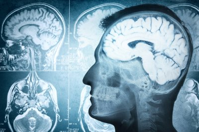 Exercise boosts brain function in older men, study says