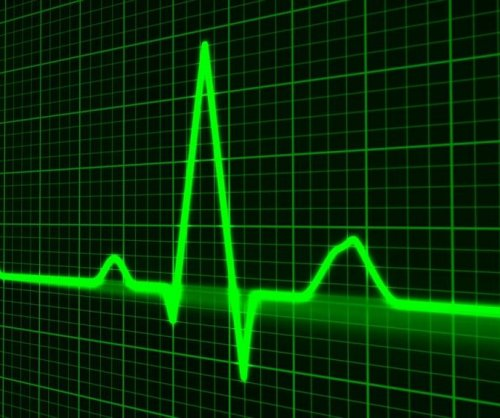 2 blood thinners help with irregular heartbeat during surgery in trial