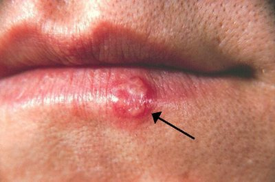 Cold sores virus, cardiovascular damage linked in study