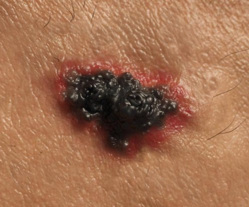 FDA approves once-a-day pill for common skin cancer