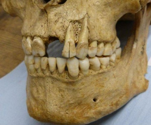 Tartar from ancient teeth to reveal how Iron Age Britons ate
