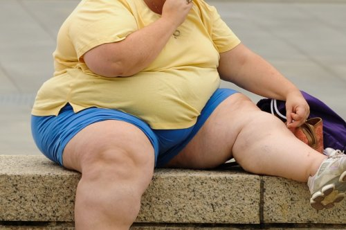 Study finds obesity may reprogram muscle stem cells