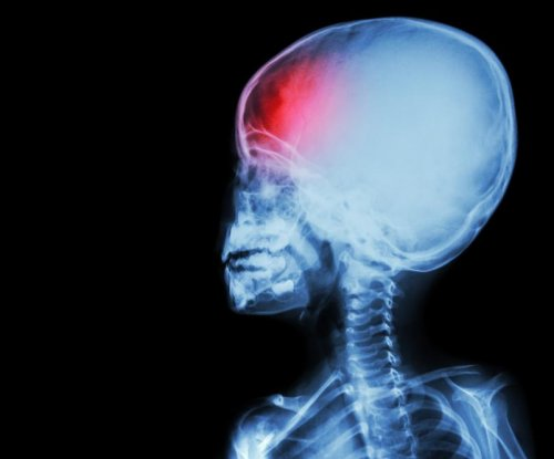 Low-income children receive sub-par care for brain injuries, study says