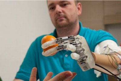 Bionic hand gives Danish amputee sense of touch