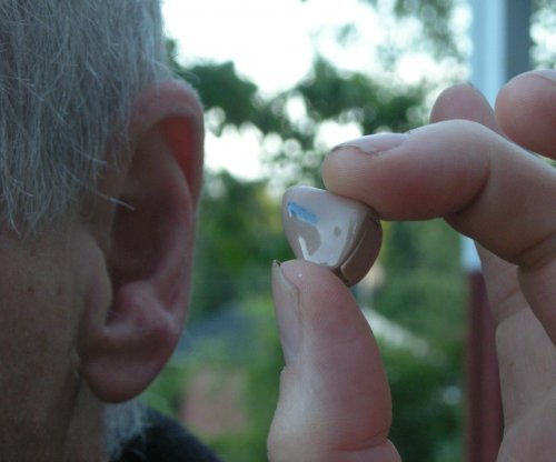 Expert: Tinnitus, hearing loss not uncommon in COVID-19 patients