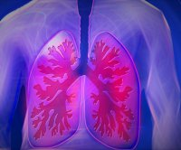 Drug offers hope against disease with progressive lung scarring