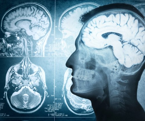 Study: Radiation causes cognition damage in brain cancer patients