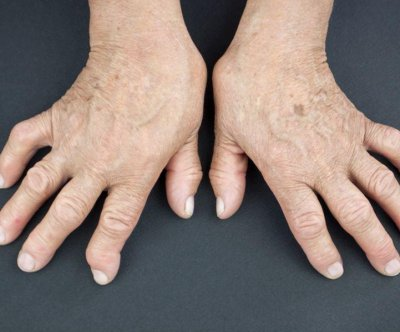 FDA approves new biological drug for rheumatoid arthritis