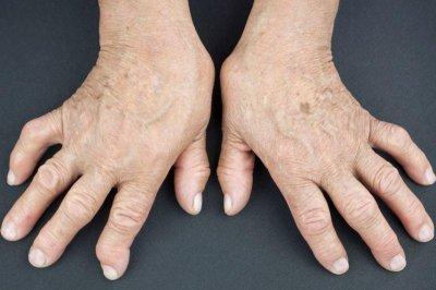 FDA approves new biological drug for rheumatoid arthritis