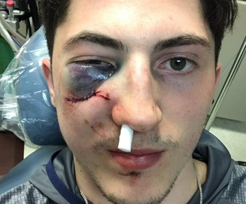 Zach Werenski is the face of NHL playoff hockey