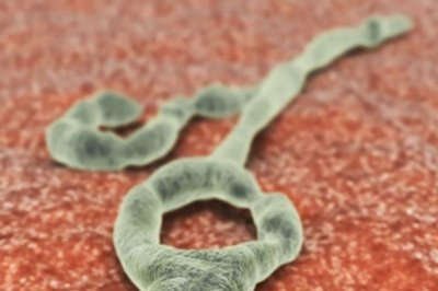 Woman may have passed on Ebola a year after recovery