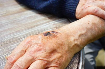 Study: Antiobitics, probiotics together eradicate bacteria that infect wounds