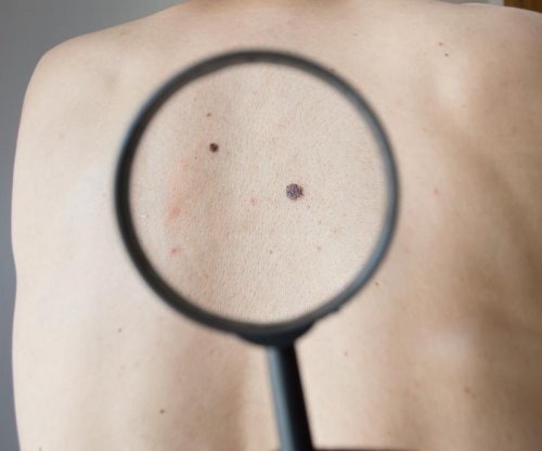FDA approves drug combination for melanoma treatment