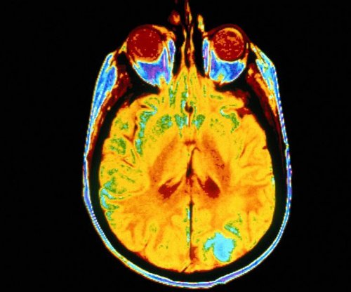 Brain tumors more common in better educated, wealthier folks