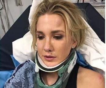Savannah Chrisley of 'Chrisley Knows Best' fractured her vertebrae in a car accident