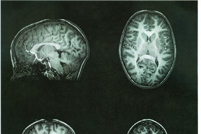Researchers: CTE was detected in living former NFL player