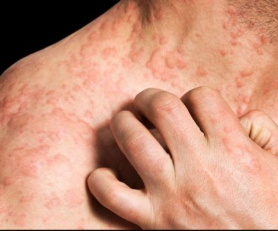 Newer Eczema Treatments Offer Relief