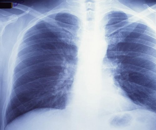 Nearly 4 million people die from asthma, COPD each year