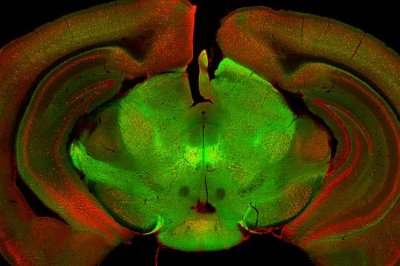Relay station in the brain controls an array of movements