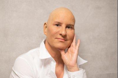 Follicular lymphoma may be curable, study suggests