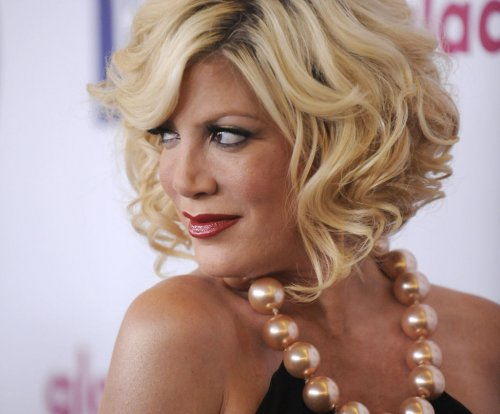 Tori Spelling suffers 'Benihana burn,' undergoes skin grafts