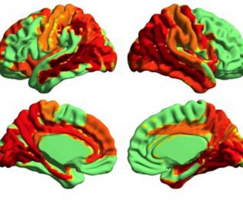 Neuroscientists measure 'higher' state of consciousness