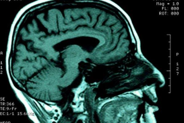 Stem Cells May Offer New Hope To Stroke Survivors Upi Com