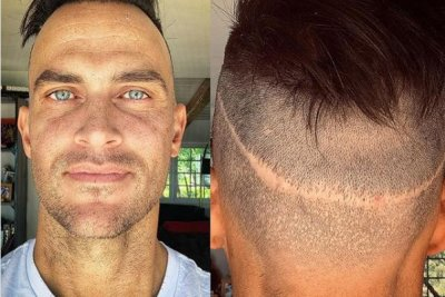 Cheyenne Jackson shares photo of head scar from hair-replacement surgery