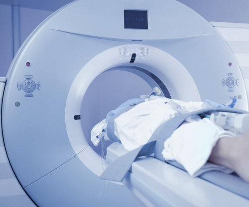 CT scans cause measurable damage to cells, say researchers