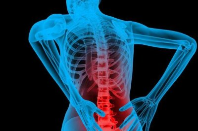 Opioids wrong way to treat lower back pain, researchers say