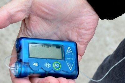 Many struggle to afford diabetes technology