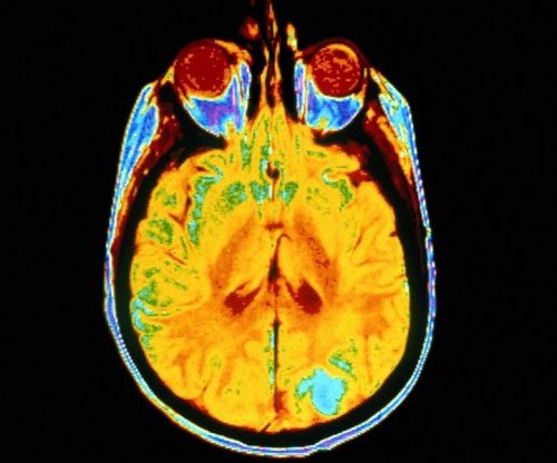 Modified polio virus may increase survival from brain cancer
