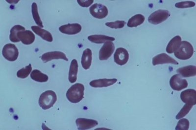 Experimental drug shows promise against sickle cell disease