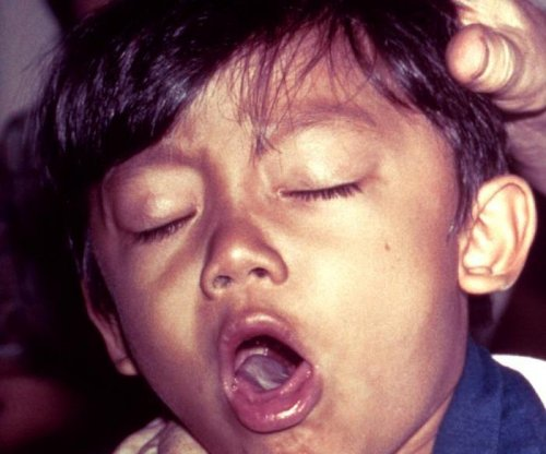 Whooping cough in California hits 70-year high