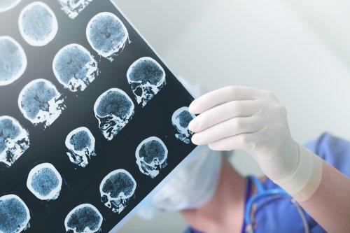 Single brain trauma linked to form of dementia in study