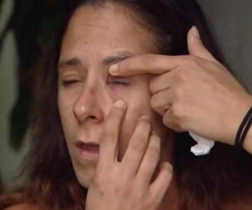 Florida woman accidentally super glued her eye shut