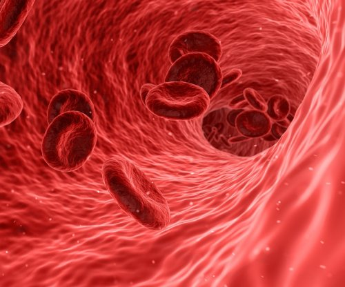 Study: Clot-busting drugs not useful after leg blockages