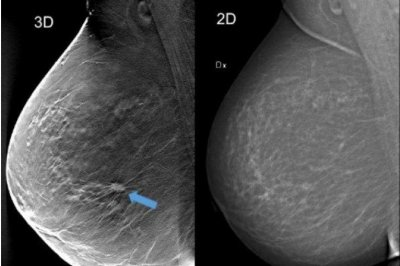 3D mammography detects 34 percent more breast cancers
