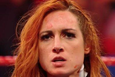 WWE Raw: Shayna Baszler attacks Becky Lynch
