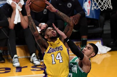 Lakers expected to be shorthanded hosting Spurs