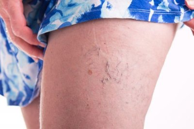 Shorter people may duck risk of varicose veins