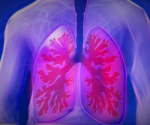 High-dose radiation may help lung cancer patients not responding to drugs