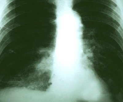 Lung cancer surgery worthwhile for older patients