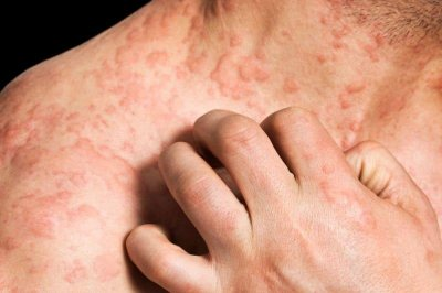 Study: 1 in 10 will develop eczema in their lifetime