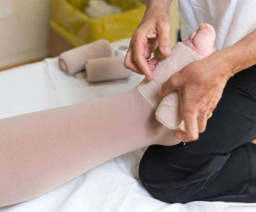 Method to reroute lymphatic system may help lymphedema treatment