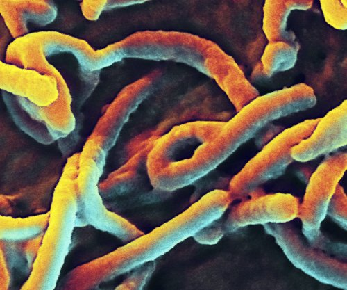 Scientists predict outcome of Ebola infection with blood test: Study