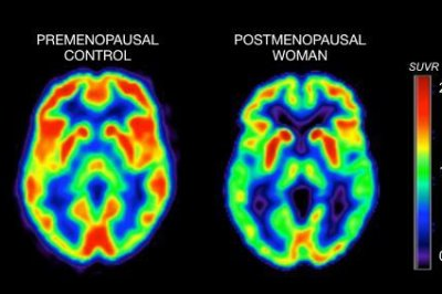 Menopause can cause changes in brain linked to Alzheimer's